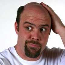 Выпадения волос и лечение у мужчин