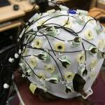 Что показывает энцефалограмма головного мозга?