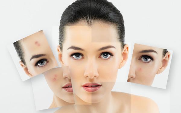 Как подобрать косметику для жирной кожи