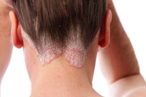 Как лечить нейродермит