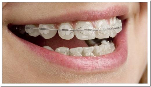 Продолжительное давление на зуб в определённой его части