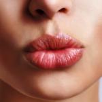 Как исправить асимметрию губ