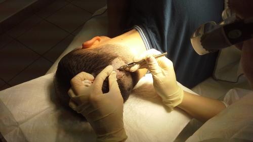 Как делают пересадку волос