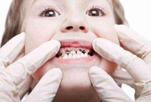 Периодонтит молочного зуба - что это такое