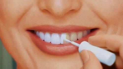 Как делают отбеливание зубов