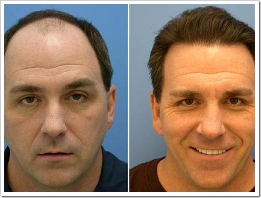 Малоинвазивная методика пересадки волос